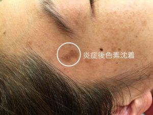顔のイボ,治療