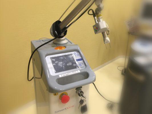 炭酸ガスレーザーの治療費用・料金