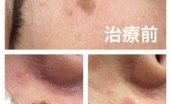 首イボ,レーザー治療