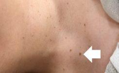 首のポツポツを治すには。首イボクリームは効果なし?